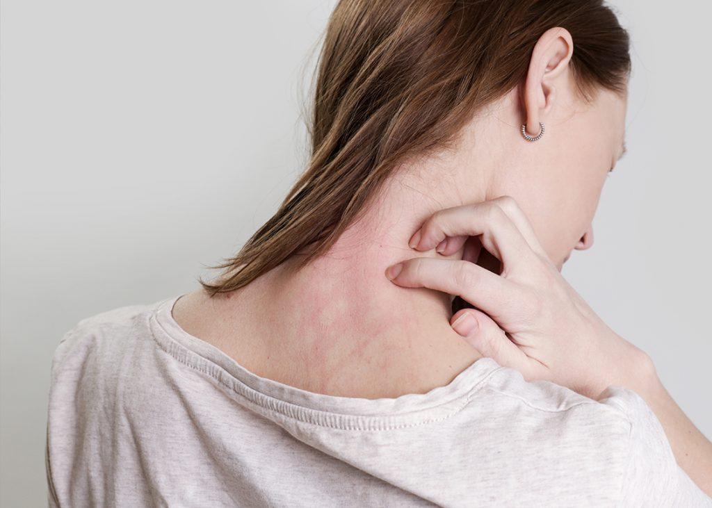 Dermatite cura omeopatica